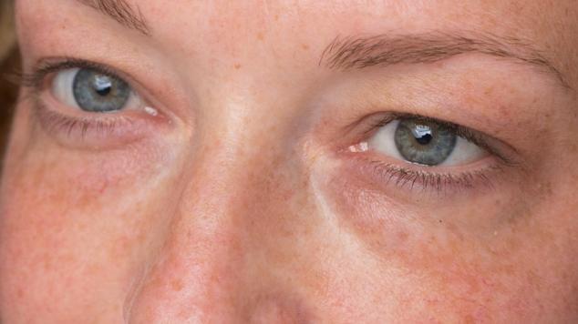 clinesbox avant optim eyes patch filorga